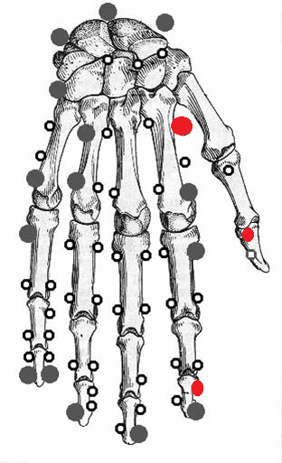 Back of hand point chart.png
